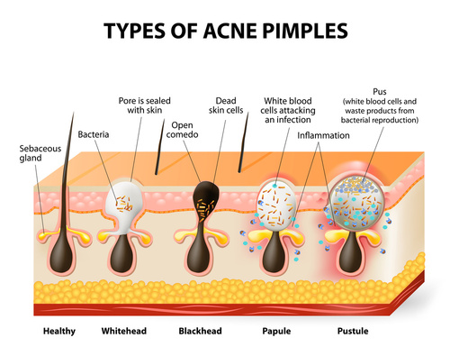 acne pimples natural solution caracol skincare