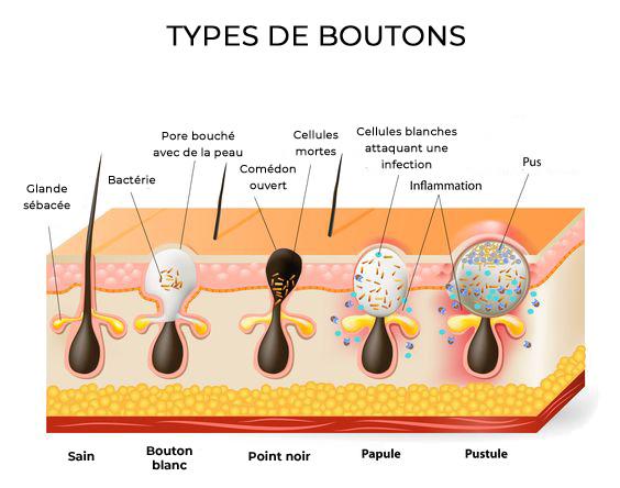 bouton acne bave escargot
